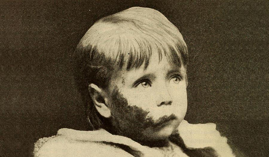 child_scarlet_fever-apha-190205.jpg