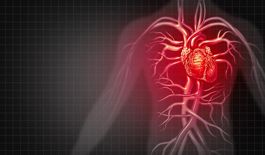 heart_attack_illustration-apha-180731.jpg